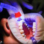 Zły sposób odżywiania się to większe braki w ustach oraz również ich zgubę